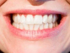 Tanden en gewrichten; een relatie?
